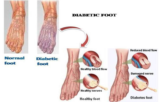 Diabetic Foot Research India And Diabetic Amputation Prevention